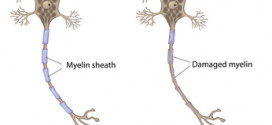 Esclerosis lateral amiotrófica – ELA