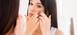 Cómo acabar con el acné sin dañar mi piel