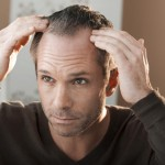 ALOPECIA perdida del cabello